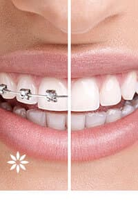 Brady dentist for Invisalign