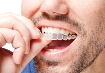 Invisalign clear braces for Brady TX and Burnet