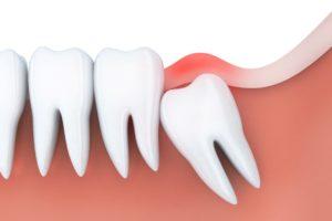 Image used for impacted wisdom teeth